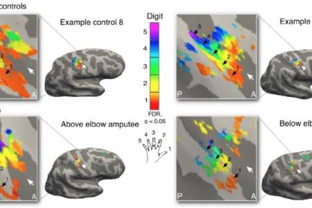 Пластичность мозга поможет лечить фантомные боли