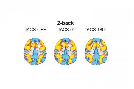 Стимуляция переменным током ускорила рабочую память