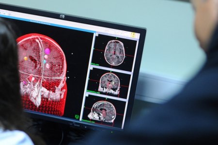 Российские ученые научились стимулировать нервные клетки с помощью инфракрасного излучения