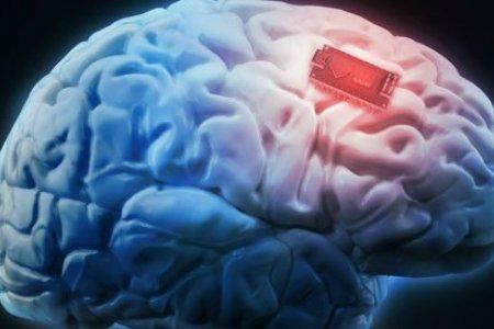 В мозг человека вживили улучшающее память устройство