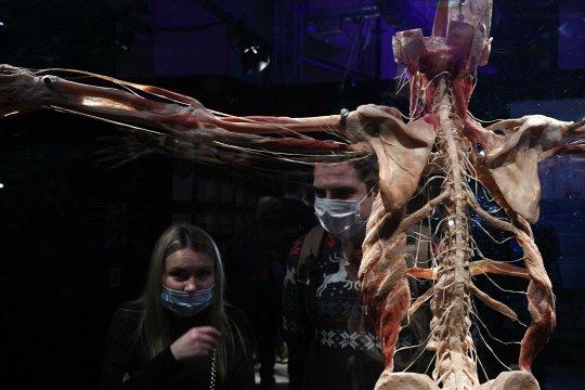 Выставка одного обмана: «Мир тела» на ВДНХ